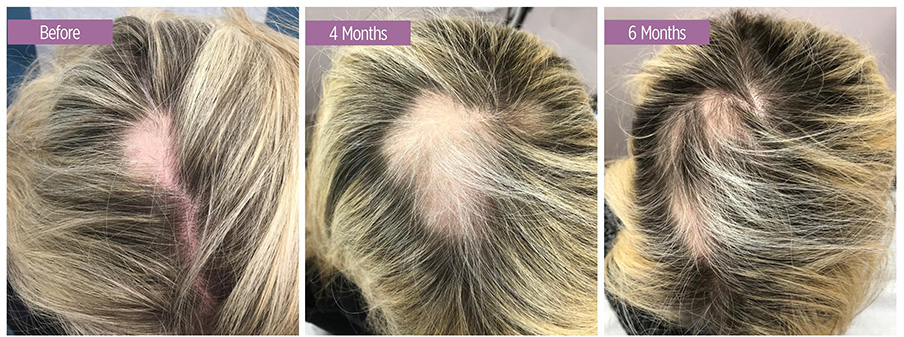 Vampire Hair Regrowth Before and After